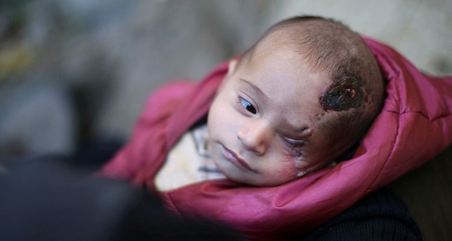 world-shows-solidarity-syrian-baby-lost-eye-assads-bombardment