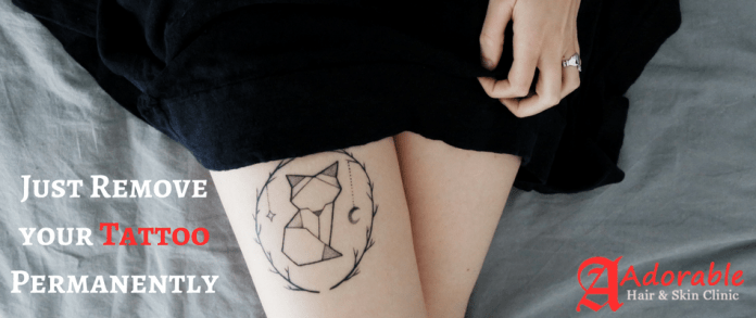 Do you Know? How to Remove Tattoo Permanently